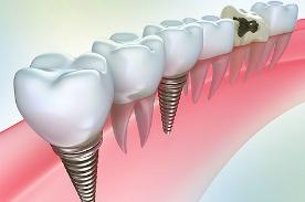 Медцентрум Зубные имплантанты выгодно устанавливать у нас!