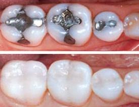 зубные пломбы