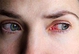 Симптомы и лечение конъюнктивита