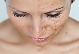 Лечение гиперпигментации кожи на лице