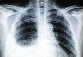 Причины, симптомы и лечение плеврита