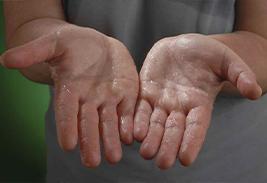 Гипергидроз — понятие, причины и симптомы