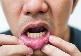 Особенности язвенного стоматита