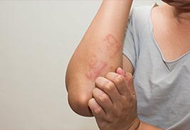 Разновидность аллергии и лечение
