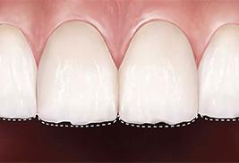 Стираемость зубной эмали норма и патология