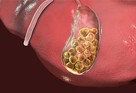 Желчнокаменная болезнь 6 факторов риска