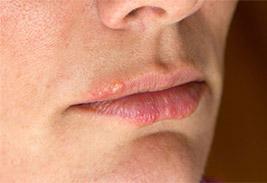 Как быстро избавиться от рецидивирующего лабиального герпеса на губах