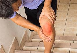 Ушиб колена при падение